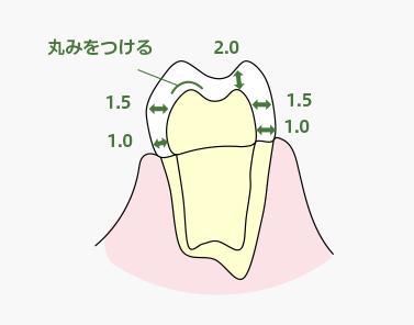 支台歯形成時のお願い